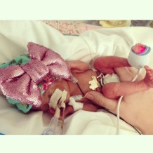 Mico-preemie Azlan showing off her big bow from TheTwistedKnot